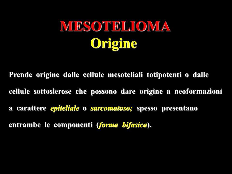 MESOTELIOMA Origine. Prende origine dalle cellule mesoteliali totipotenti o dalle.
