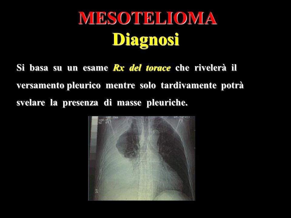 MESOTELIOMA Diagnosi Si basa su un esame Rx del torace che rivelerà il