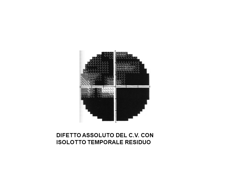 DIFETTO ASSOLUTO DEL C.V. CON ISOLOTTO TEMPORALE RESIDUO