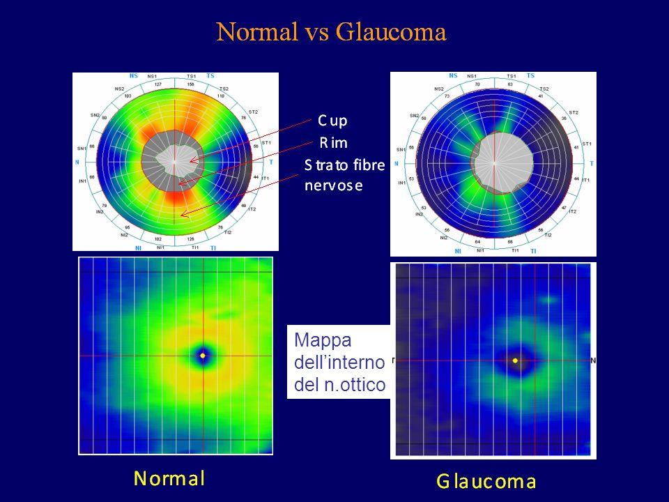 Mappa dell'interno del n.ottico