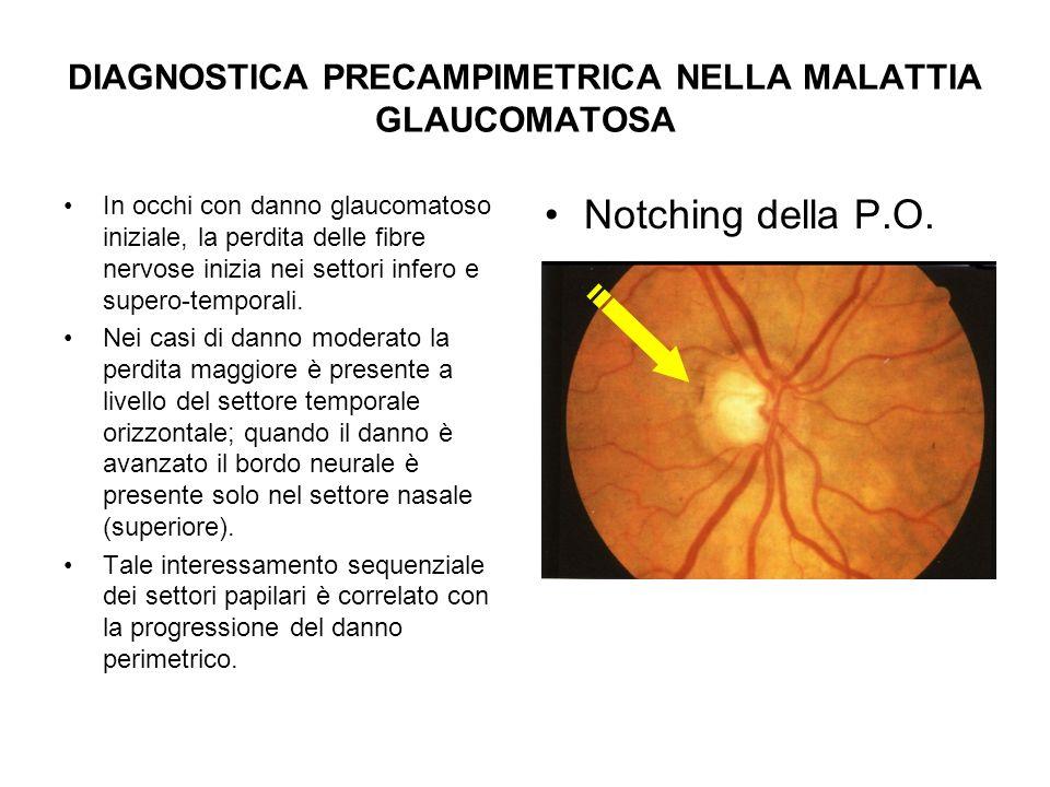 DIAGNOSTICA PRECAMPIMETRICA NELLA MALATTIA GLAUCOMATOSA