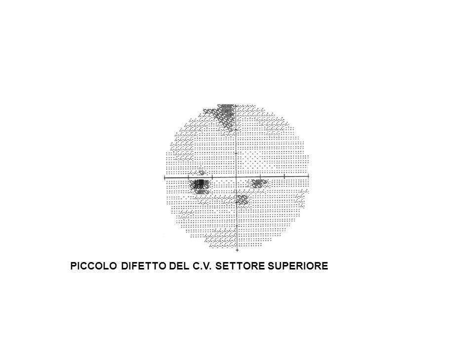PICCOLO DIFETTO DEL C.V. SETTORE SUPERIORE