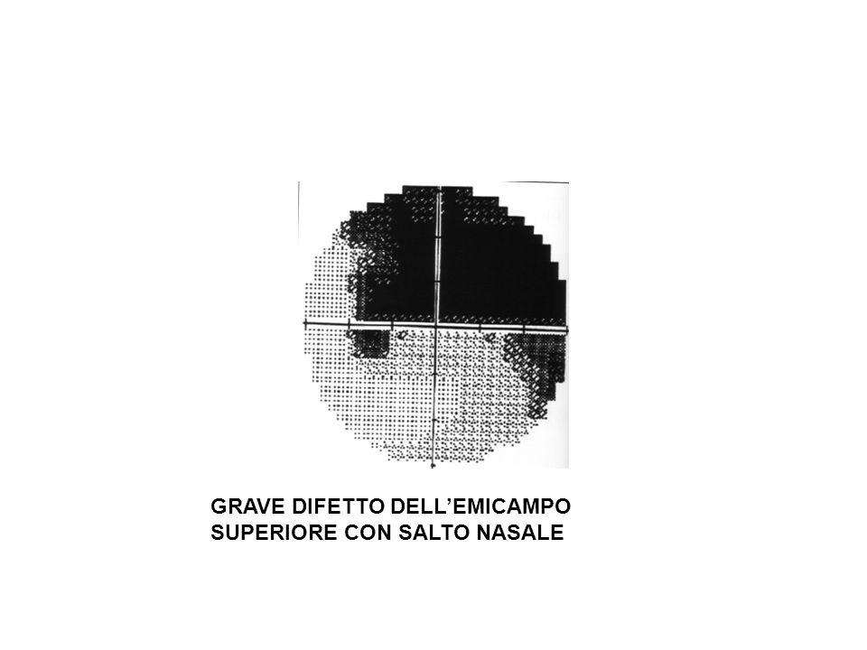 GRAVE DIFETTO DELL'EMICAMPO SUPERIORE CON SALTO NASALE
