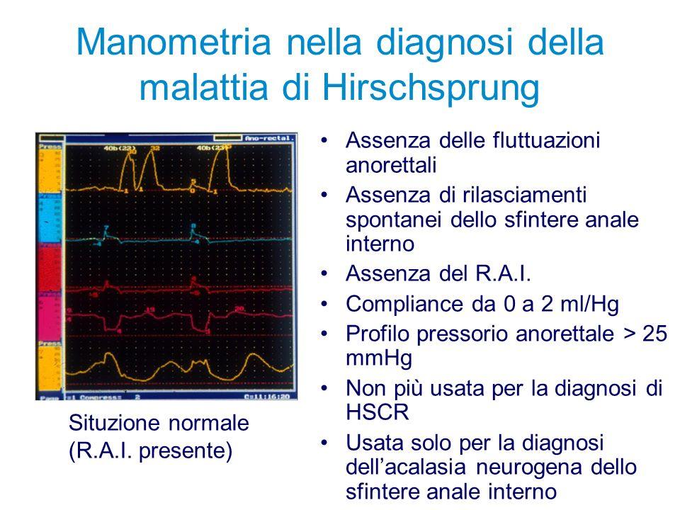 Manometria nella diagnosi della malattia di Hirschsprung