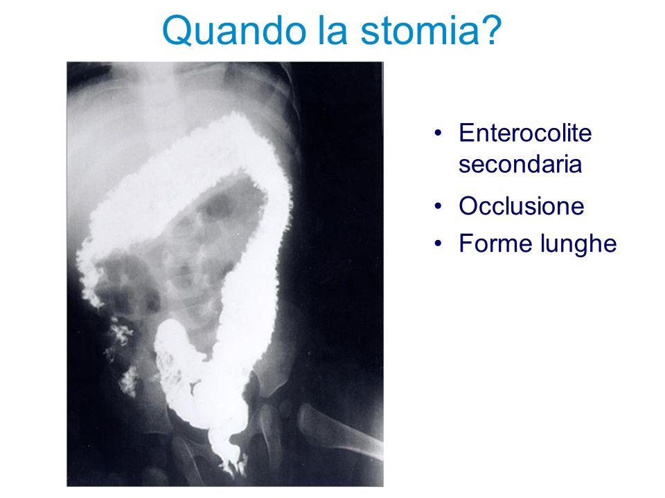 Quando la stomia Enterocolite secondaria Occlusione Forme lunghe