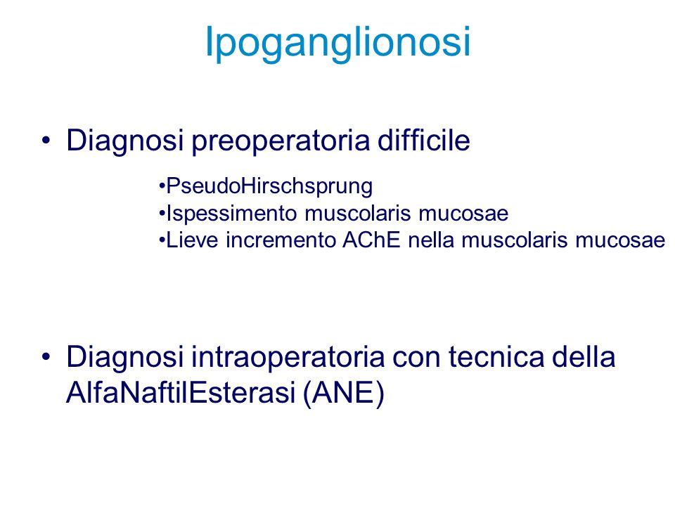 Ipoganglionosi Diagnosi preoperatoria difficile