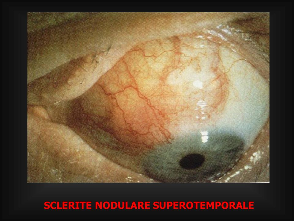 SCLERITE NODULARE SUPEROTEMPORALE