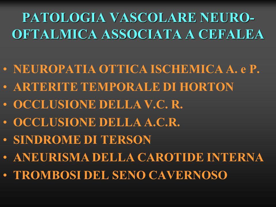 PATOLOGIA VASCOLARE NEURO-OFTALMICA ASSOCIATA A CEFALEA