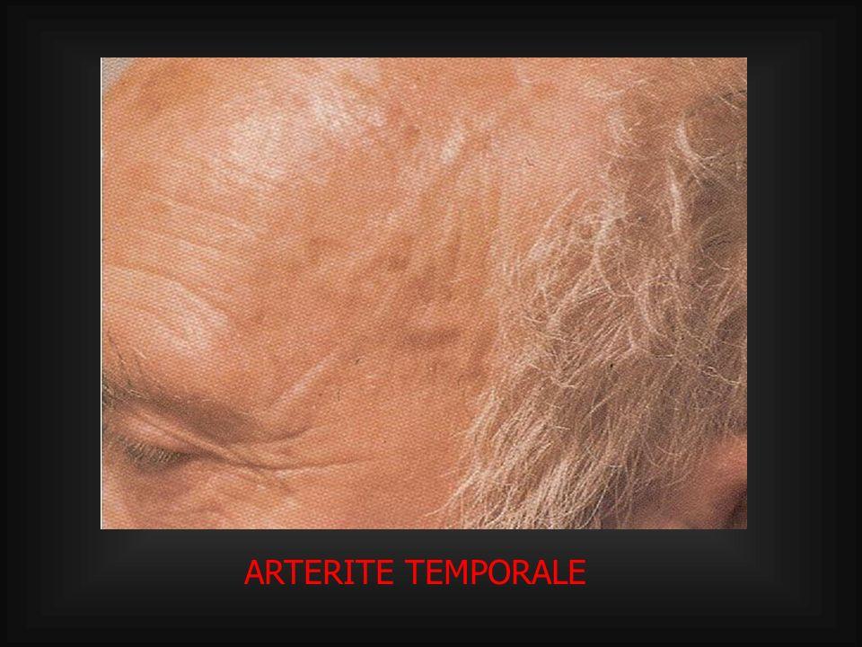 ARTERITE TEMPORALE