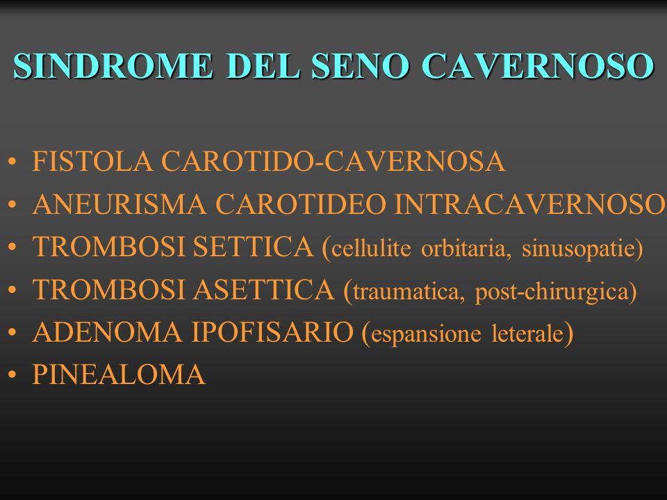 SINDROME DEL SENO CAVERNOSO