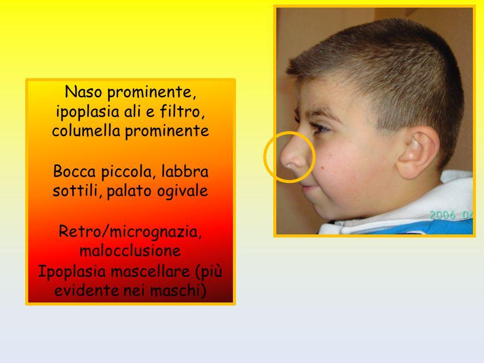 Naso prominente, ipoplasia ali e filtro, columella prominente