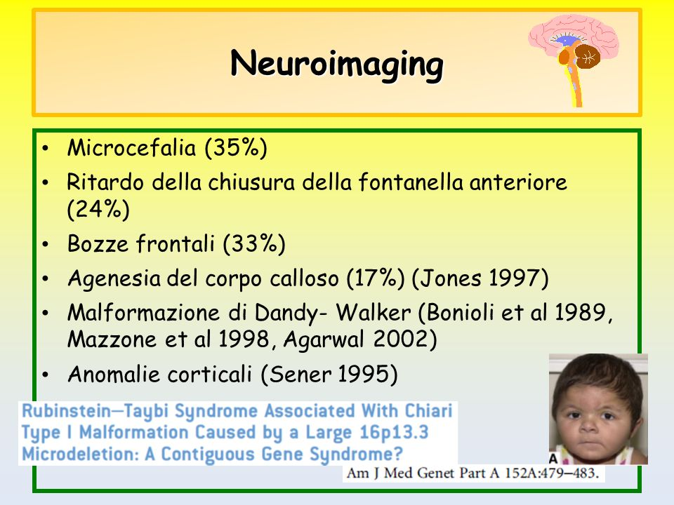 Neuroimaging Microcefalia (35%)