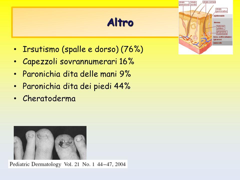 Altro Irsutismo (spalle e dorso) (76%) Capezzoli sovrannumerari 16%