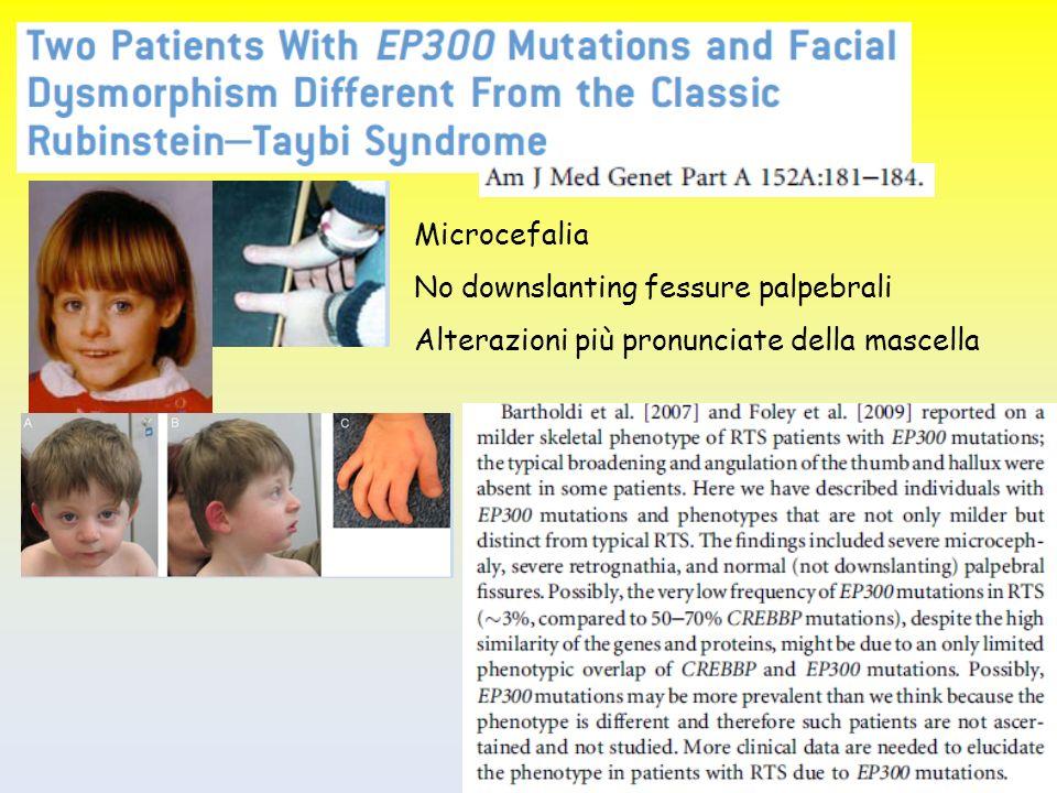 No downslanting fessure palpebrali