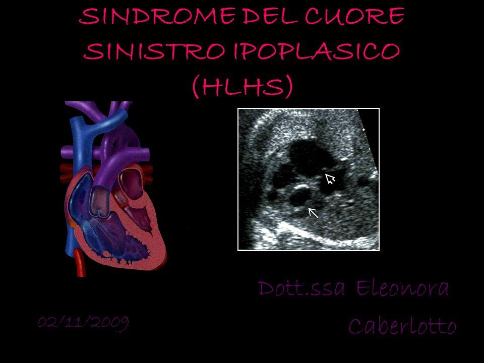 SINDROME DEL CUORE SINISTRO IPOPLASICO (HLHS)