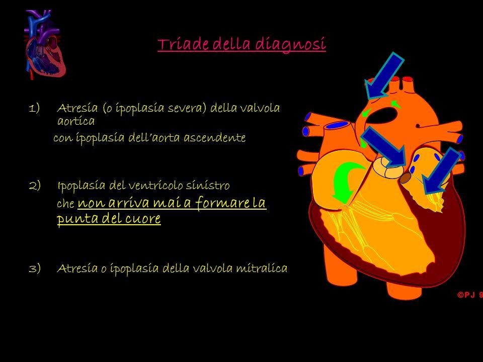 Triade della diagnosi Atresia (o ipoplasia severa) della valvola aortica. con ipoplasia dell'aorta ascendente.