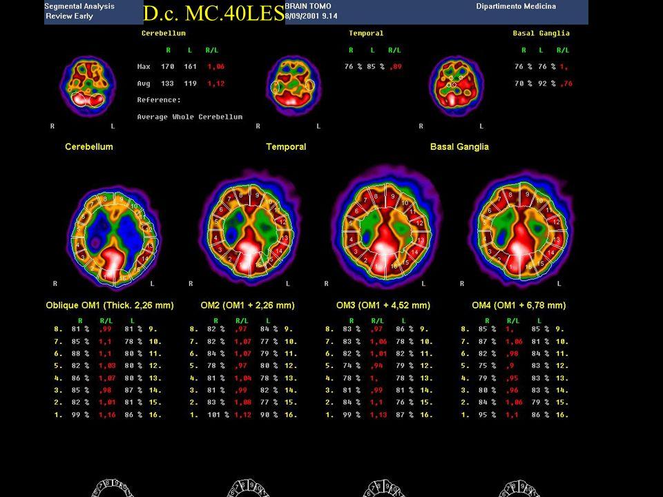 D.c. MC.40LES