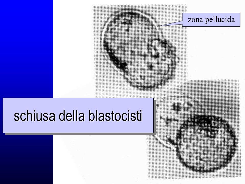 schiusa della blastocisti