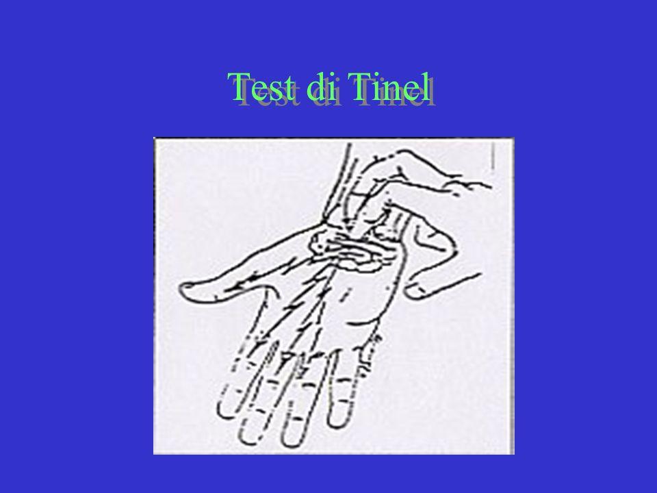 Test di Tinel