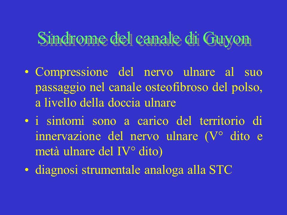 Sindrome del canale di Guyon