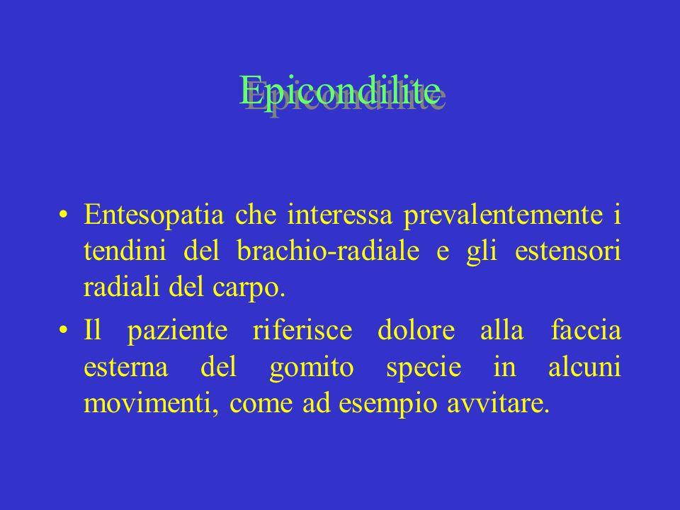 Epicondilite Entesopatia che interessa prevalentemente i tendini del brachio-radiale e gli estensori radiali del carpo.