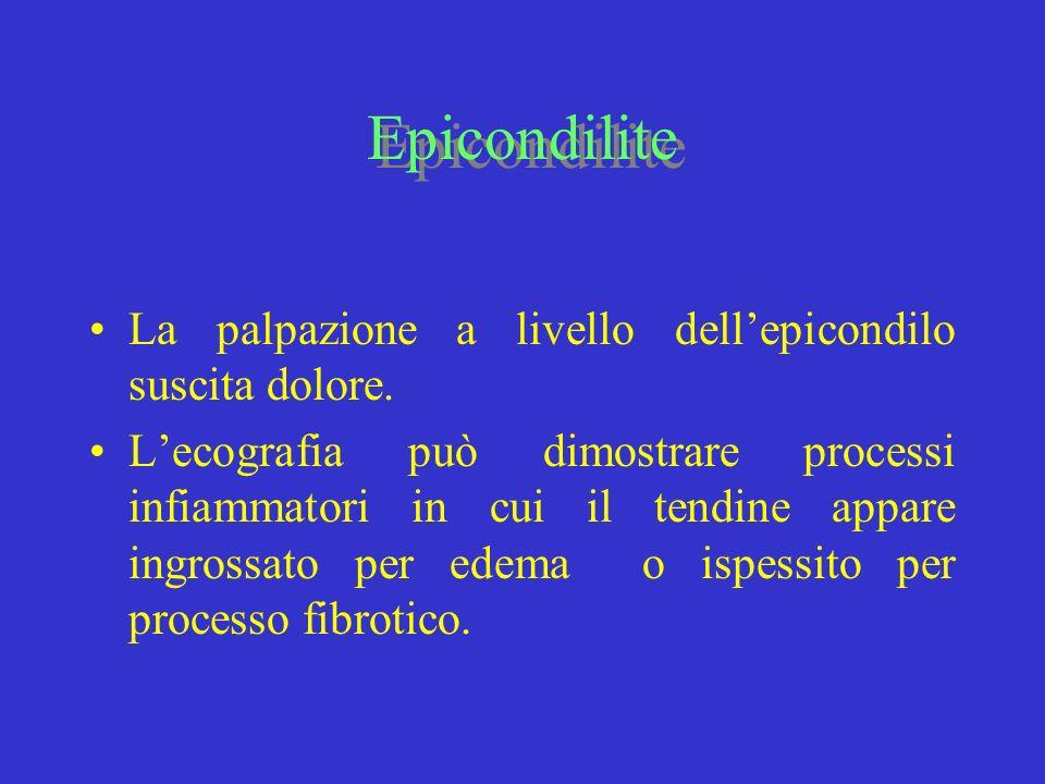 Epicondilite La palpazione a livello dell'epicondilo suscita dolore.