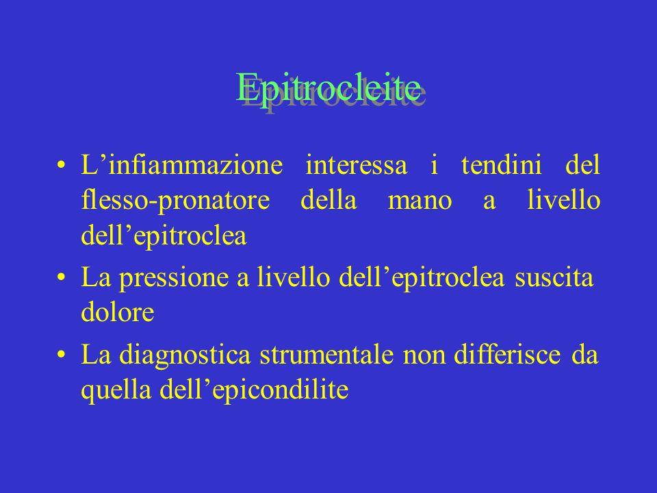 Epitrocleite L'infiammazione interessa i tendini del flesso-pronatore della mano a livello dell'epitroclea.