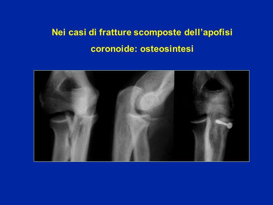 Nei casi di fratture scomposte dell'apofisi coronoide: osteosintesi