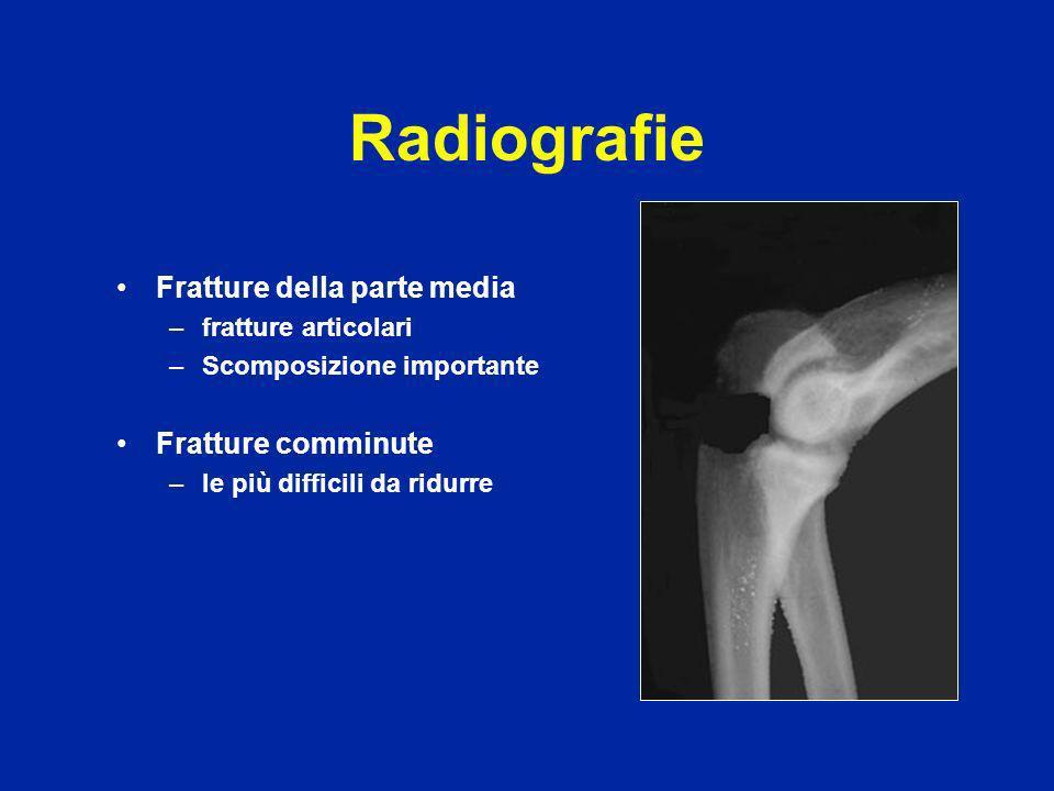 Radiografie Fratture della parte media Fratture comminute