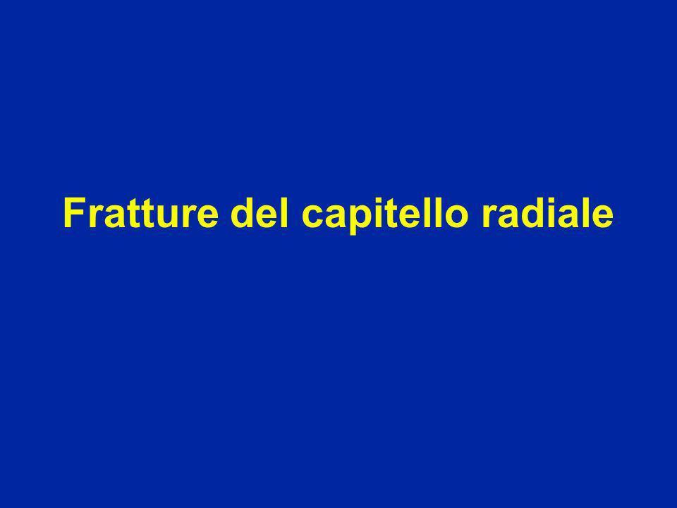 Fratture del capitello radiale