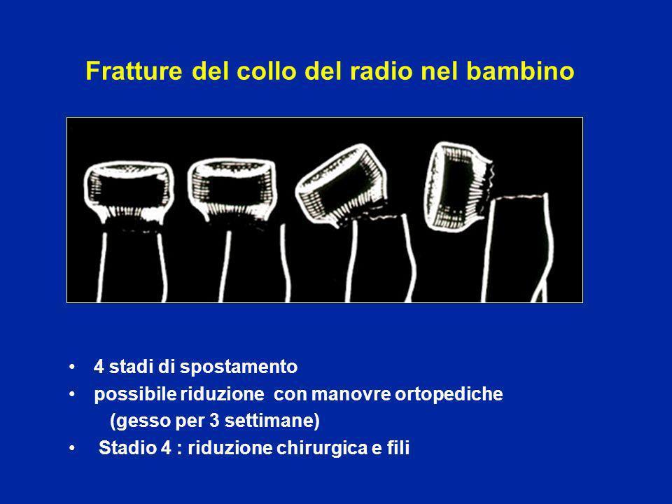 Fratture del collo del radio nel bambino
