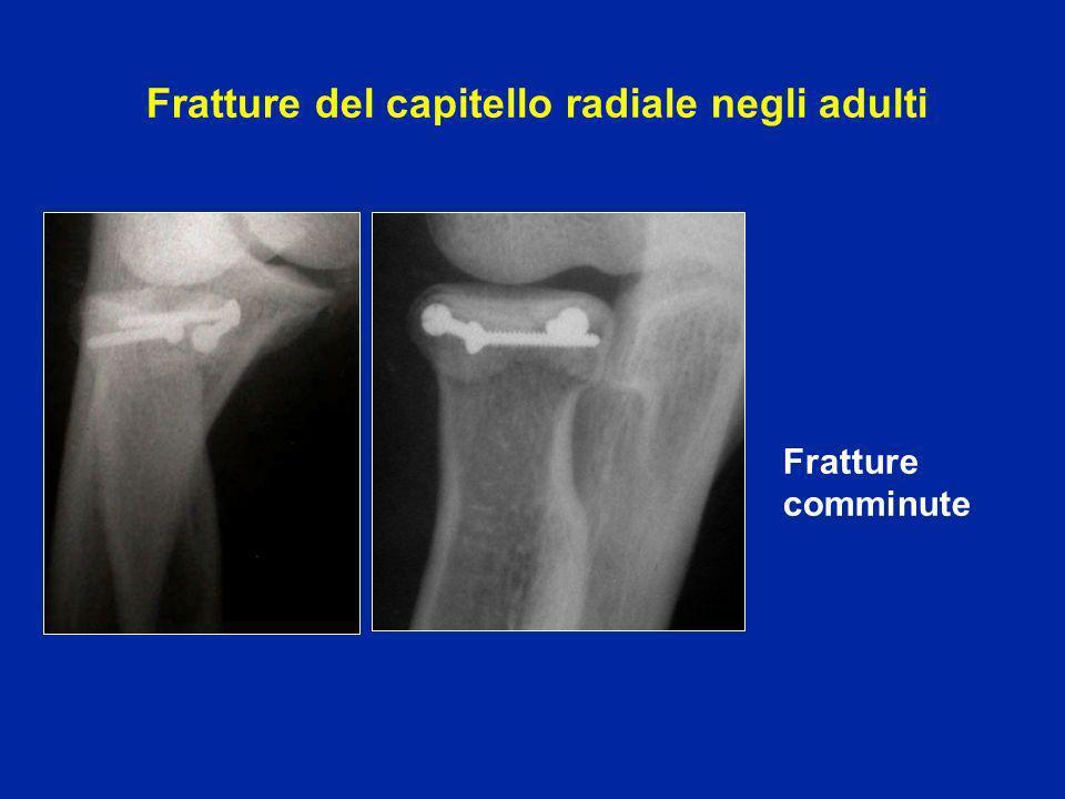 Fratture del capitello radiale negli adulti