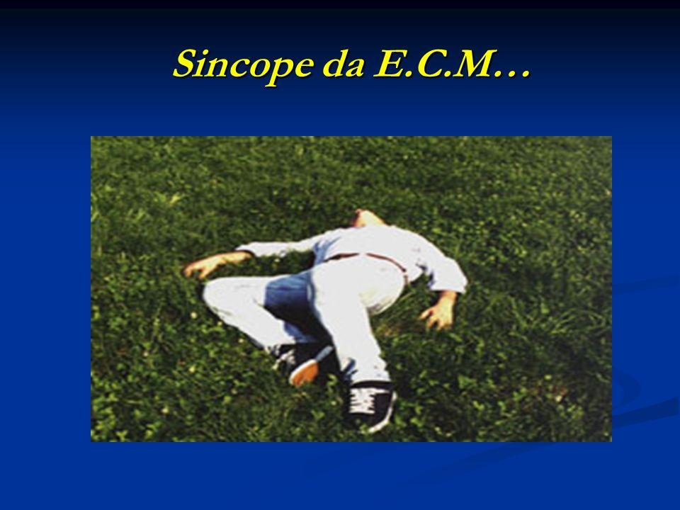 Sincope da E.C.M…