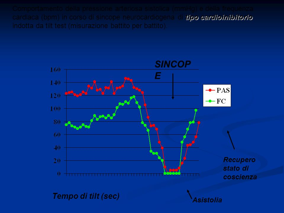 SINCOPE Tempo di tilt (sec)