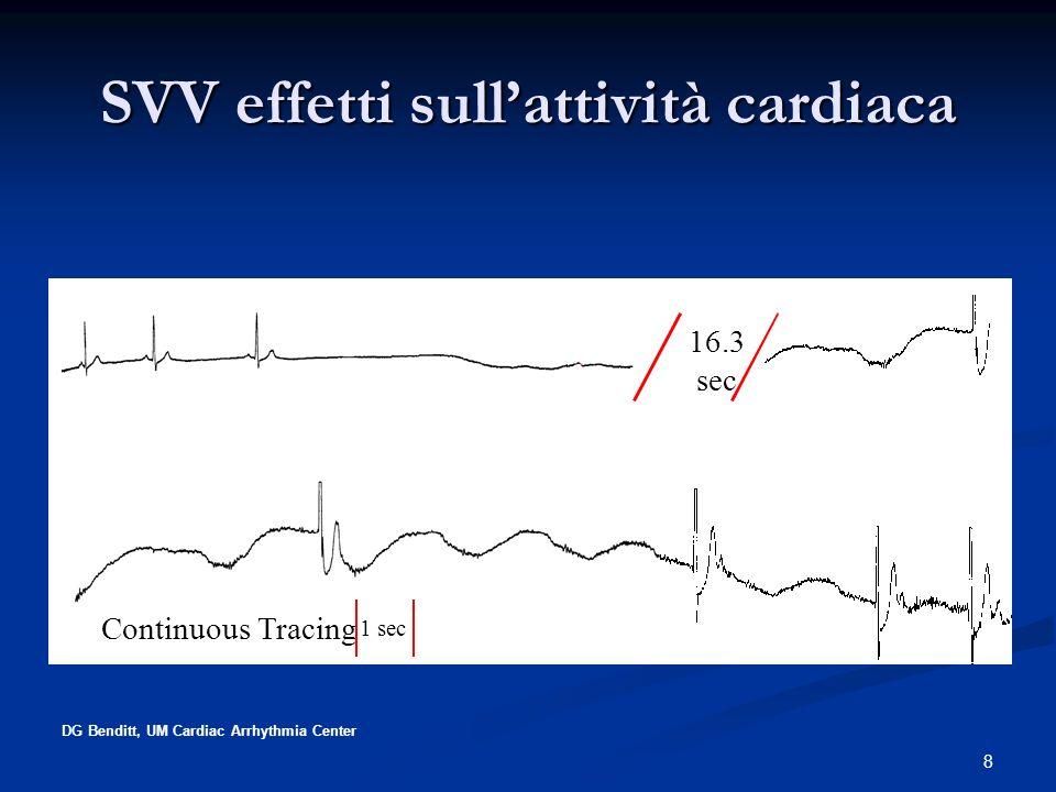 SVV effetti sull'attività cardiaca