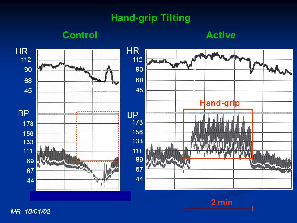 Hand-grip Tilting Control Active HR HR BP BP 2 min 112 112 90 90 68 68