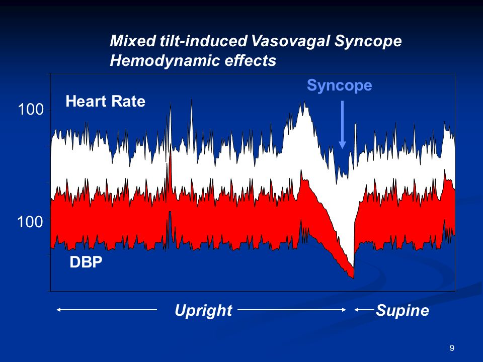Mixed tilt-induced Vasovagal Syncope