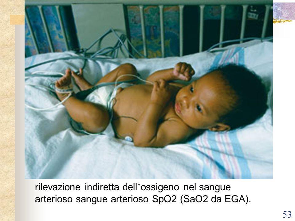 rilevazione indiretta dell'ossigeno nel sangue arterioso sangue arterioso SpO2 (SaO2 da EGA).