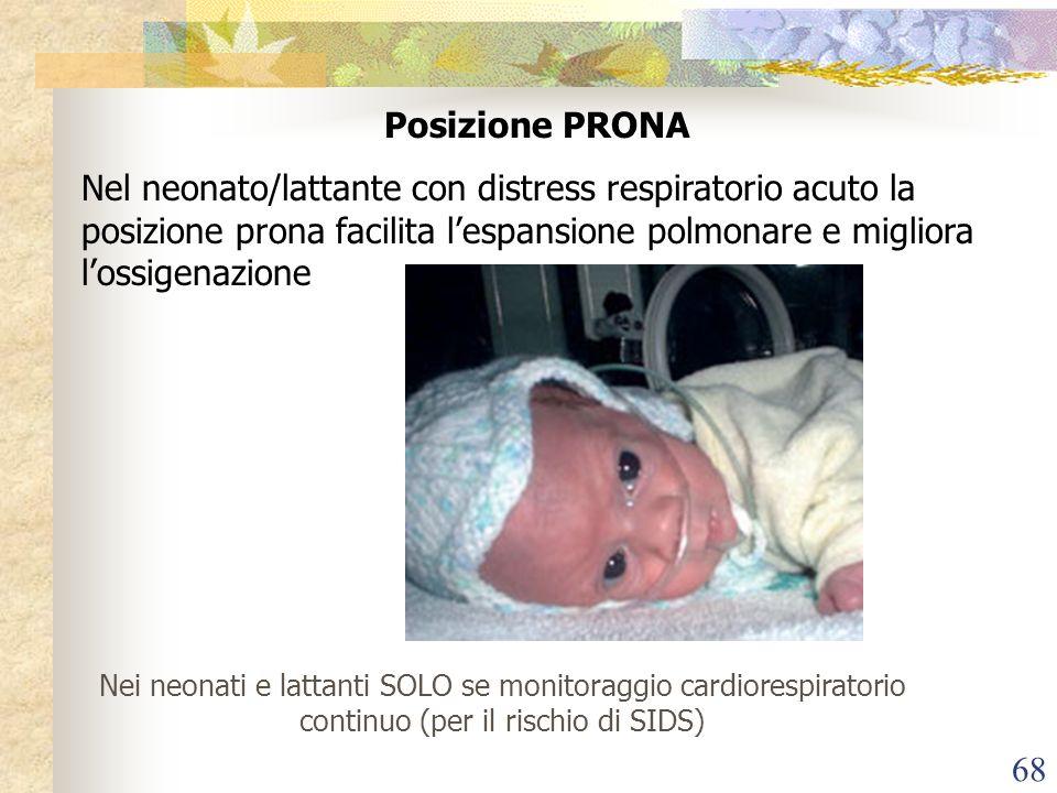 Posizione PRONA Nel neonato/lattante con distress respiratorio acuto la posizione prona facilita l'espansione polmonare e migliora l'ossigenazione.