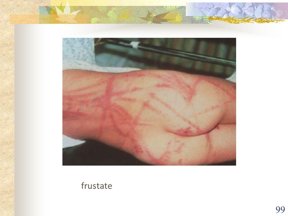 frustate
