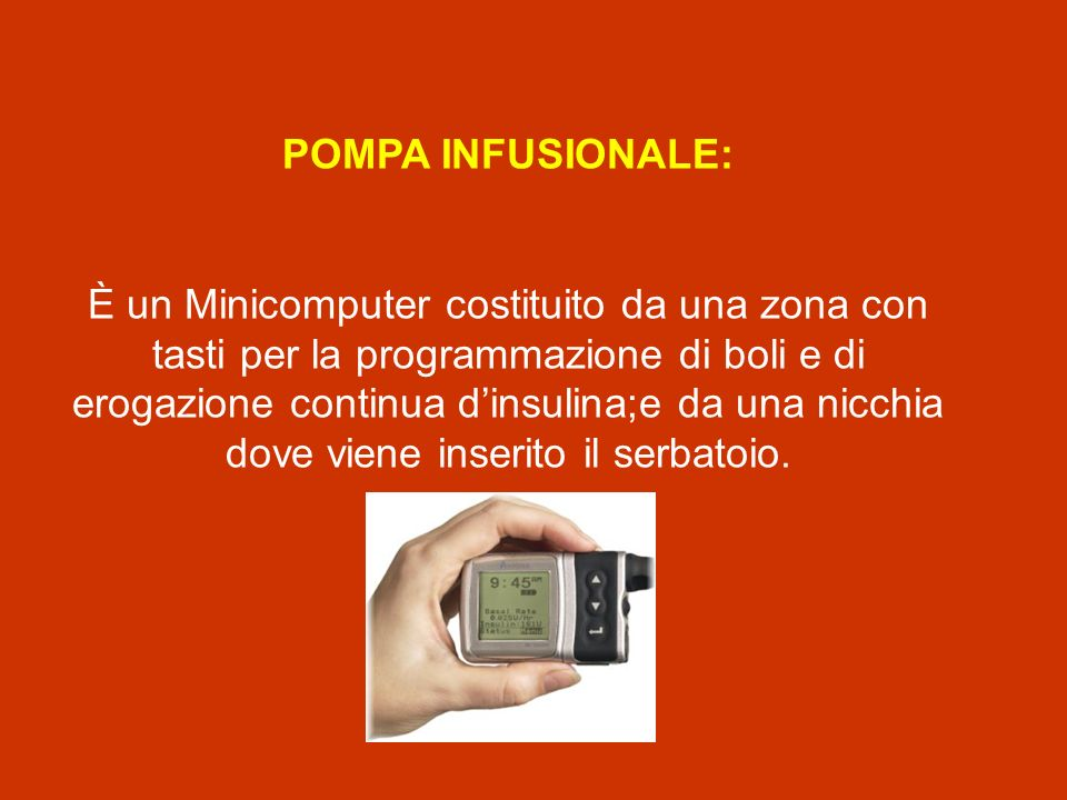 POMPA INFUSIONALE: