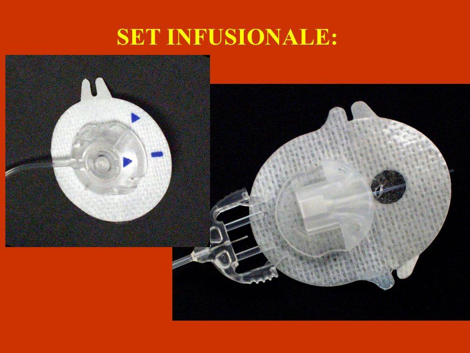 SET INFUSIONALE: È composto da un catetere e una cannula sottile e flessibile che eroga l'insulina dal microinfusore all'organismo.