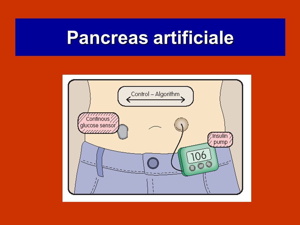 Pancreas artificiale