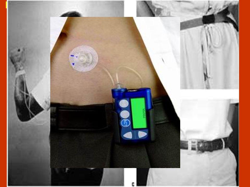 Dopo circa quarant'anni dalla sua introduzione, l'uso, a livello mondiale, del microinfusore d' insulina (CSII) è notevolmente aumentato….