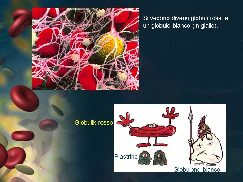 Si vedono diversi globuli rossi e un globulo bianco (in giallo).