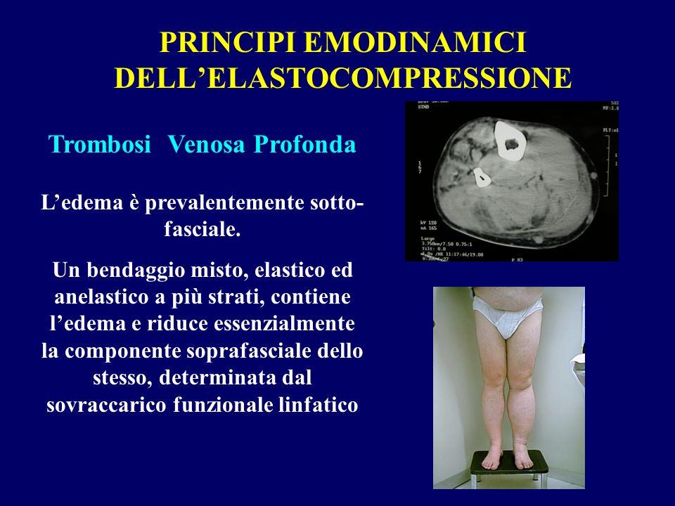 PRINCIPI EMODINAMICI DELL'ELASTOCOMPRESSIONE