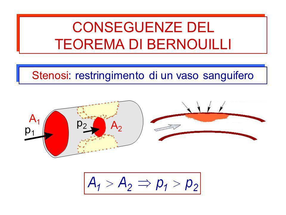 Stenosi: restringimento di un vaso sanguifero