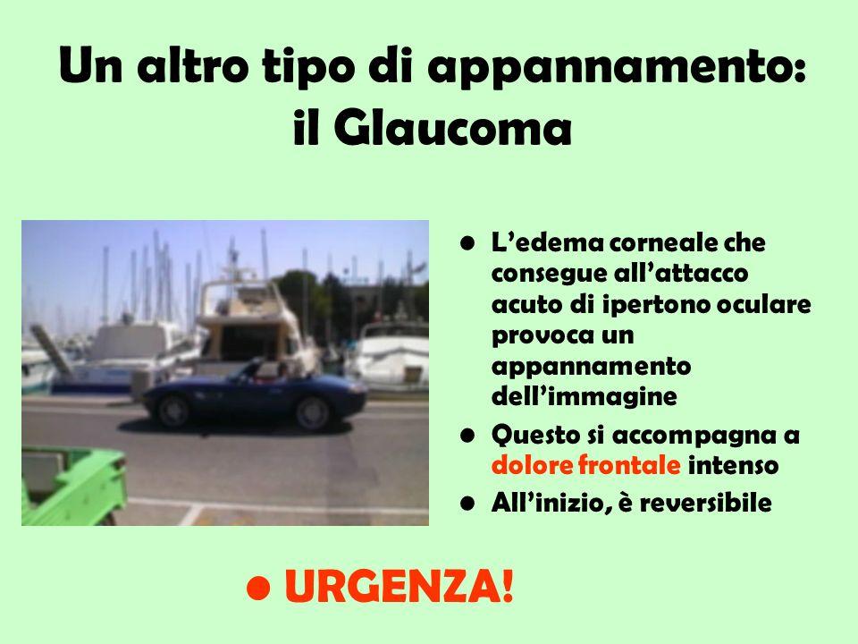 Un altro tipo di appannamento: il Glaucoma