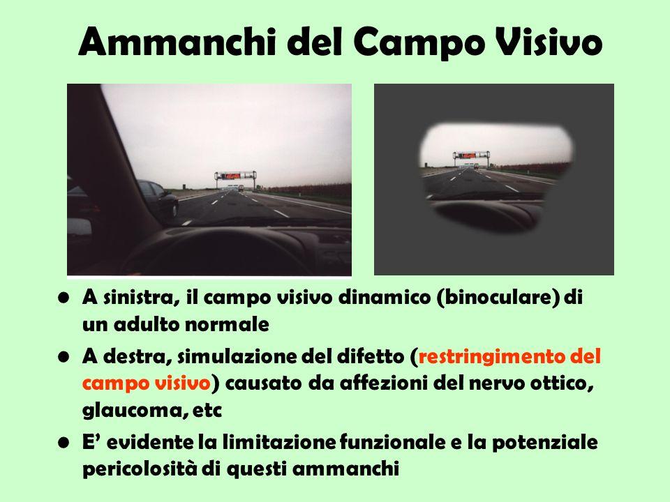 Ammanchi del Campo Visivo