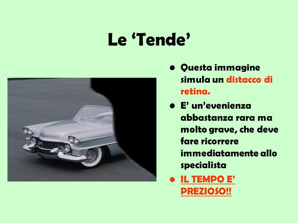Le 'Tende' Questa immagine simula un distacco di retina.